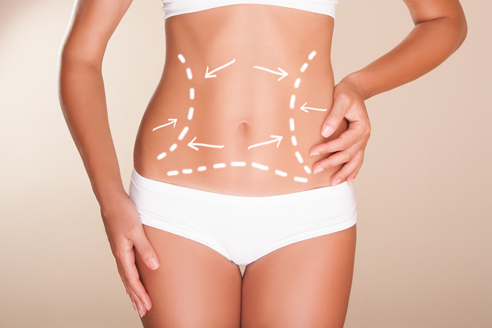 Cirurgia reparadora abdominal: o que é e para quem é indicada
