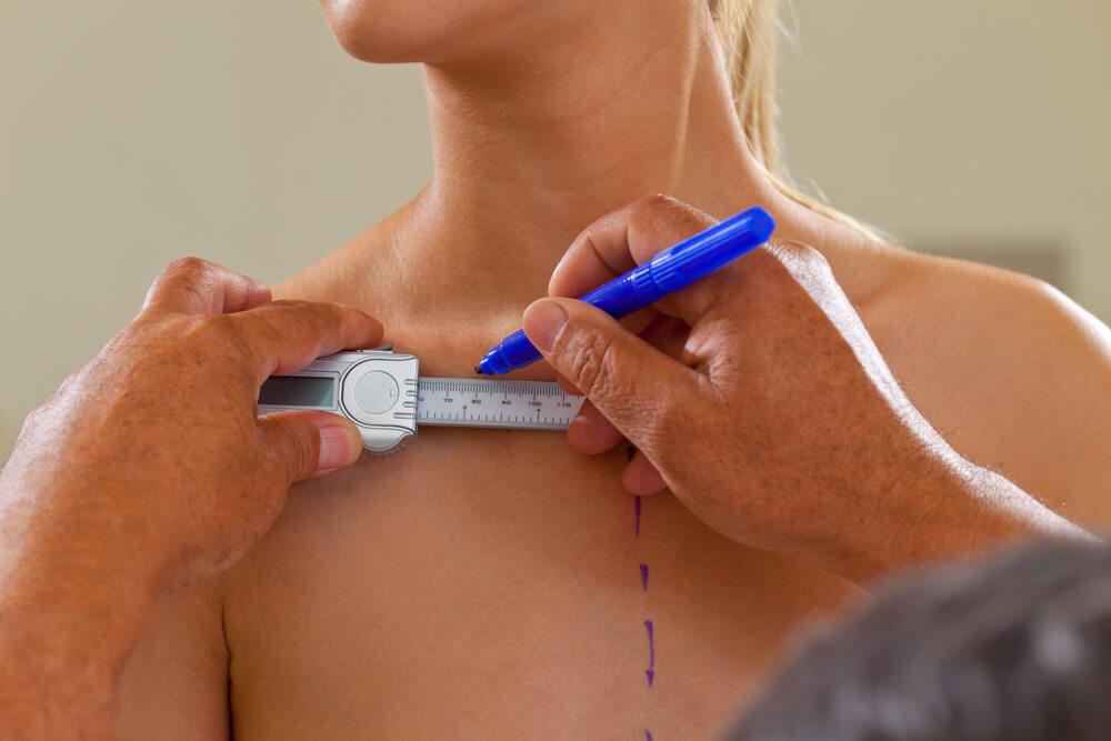 Saiba tudo sobre a mamoplastia redutora